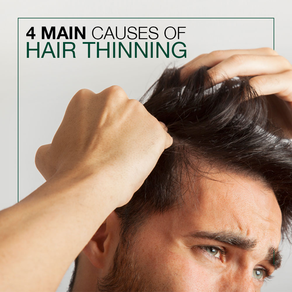 4 Main Causes Of Hair Thinning