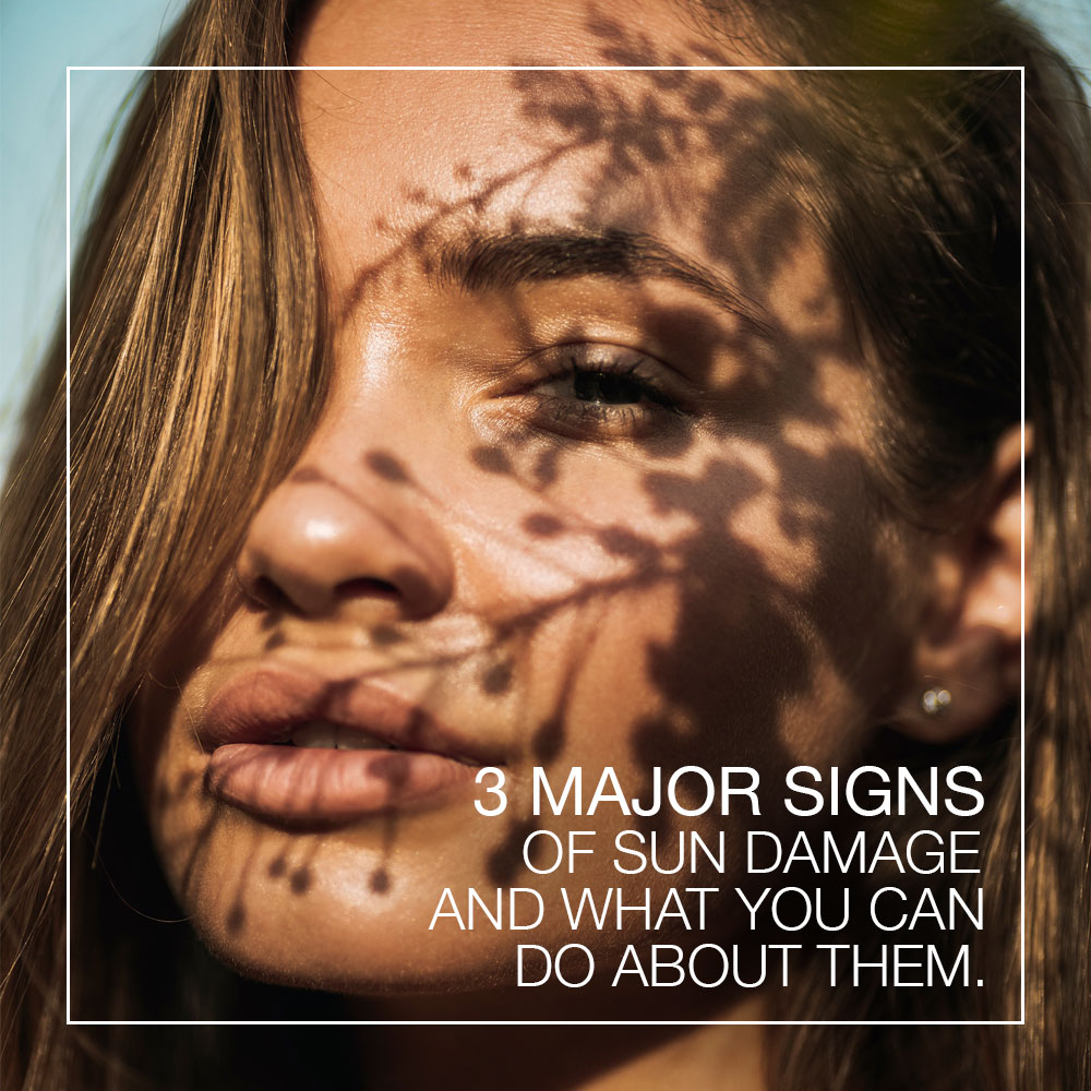 3 Major Signs of Sun Damage And What You Can Do About Them