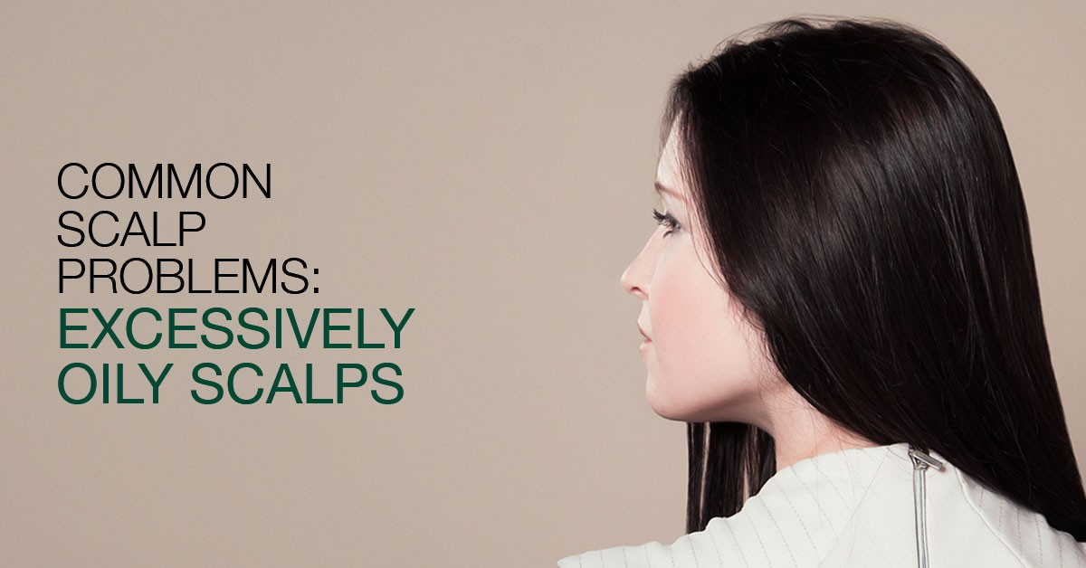 Common Scalp Problems: Excessively Oily Scalps