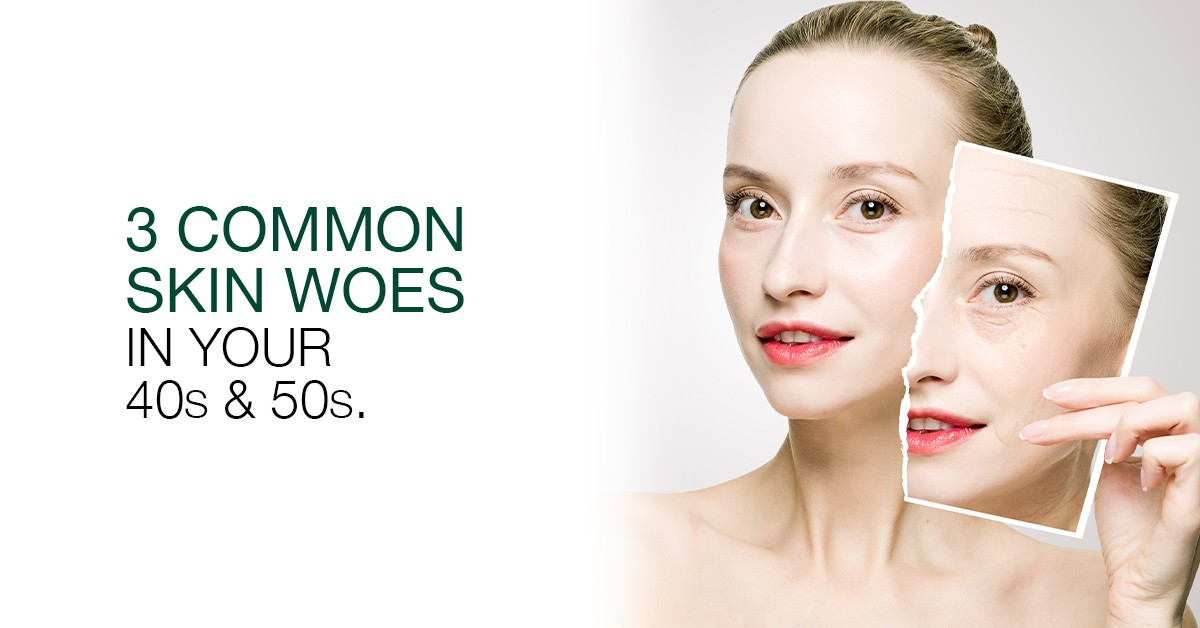 3 Common Skin Woes in Your 40s and 50s